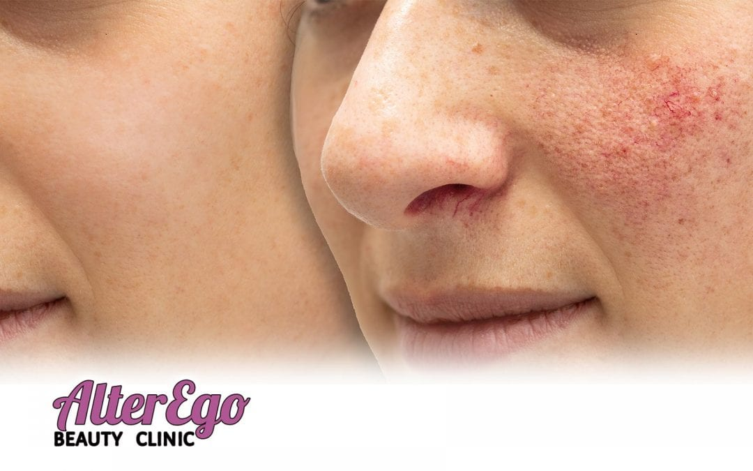 Diagnosis: Rosacea-What is it? Can it be cured?